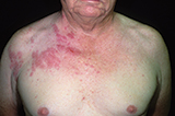 Picture of Herpes Zoster Virus Rash on Chest