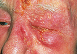 Picture of Herpes Zoster Ophthalmicus on the Face and Eye